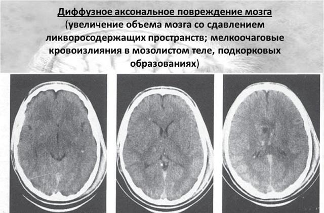 МРТ при ДАП