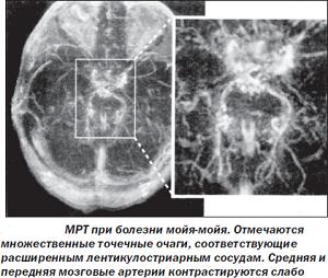 МРТ диагностика болезни Мойя-мойя