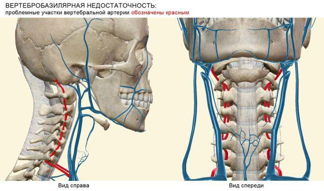Вертебро-базилярная недостаточность (вертебробазилярный синдром ...