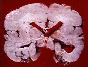 пахигирия разрез мозга