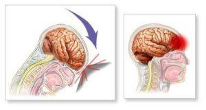 диффузная травма головного мозга
