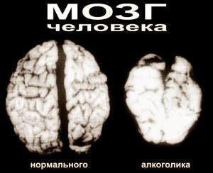 Размер мозга алкоголика
