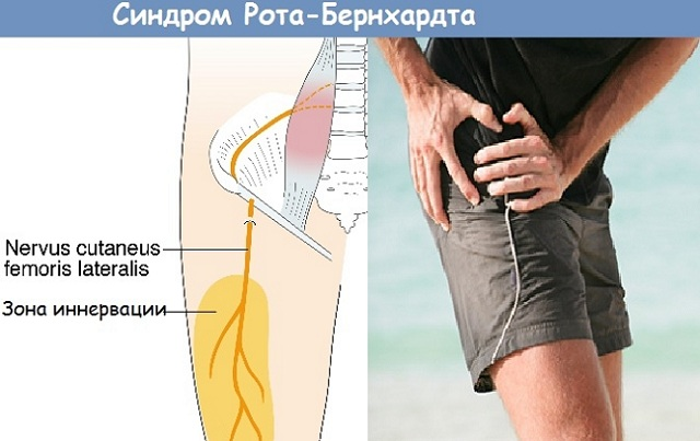 Синдром Рота