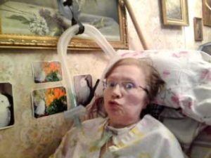 Боковой амиотрофический склероз