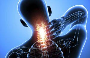 Синдром передней лестничной мишци (скаленус-синдром, Наффцигера): симптоми и лечение