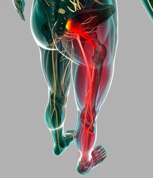 Защемление седалищного нерва: симптоми и лечение - упражнения, массаж, уколи, физиотерапия