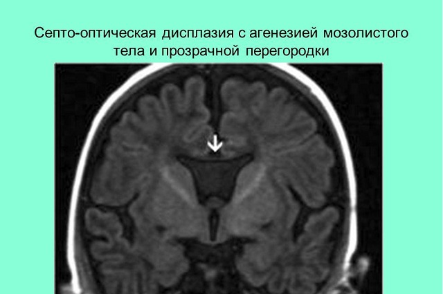 Дисплазия и агенезия