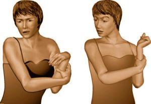 спастичность мышц