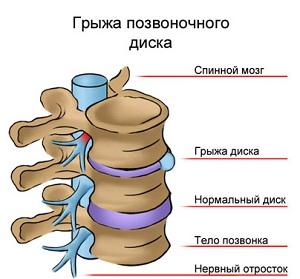 Воспаление седалищного нерва: причини, симптоми, лечение медикаментозное и народними средствами