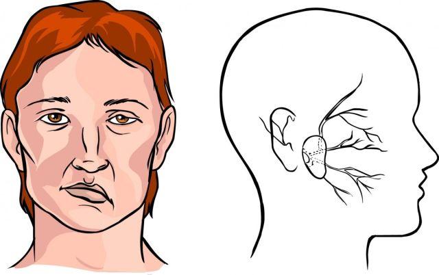 Лицо после инсульта