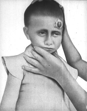 травма головы и нарушение сознания
