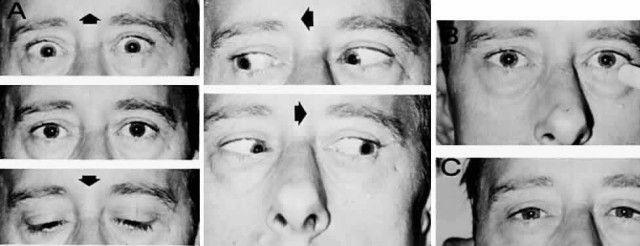 паралич вертикального взора