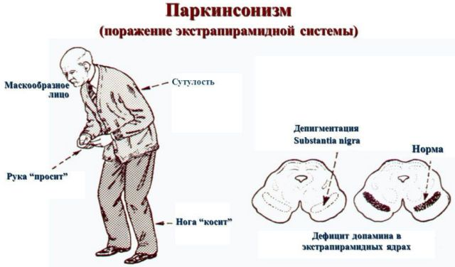 Паркинсонизм