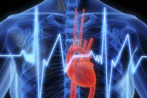 пароксизм сердца