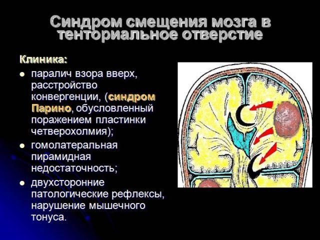 Смещение мозга в тенториальное пространство