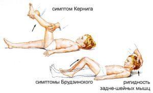 Симптомы Брудзинского и Кернига
