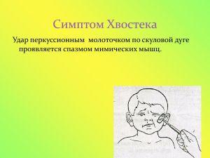 Синдром Хвостека