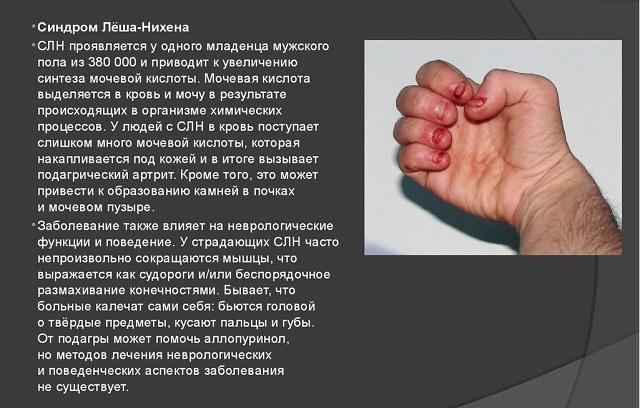 синдром леша нихана