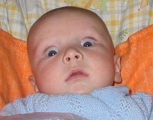 Гидроцефалия у детей: симптомы, диагностика, лечение.