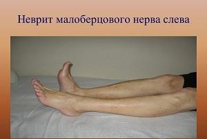 неврит малоберцового нерва