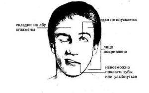 Триада симптомов