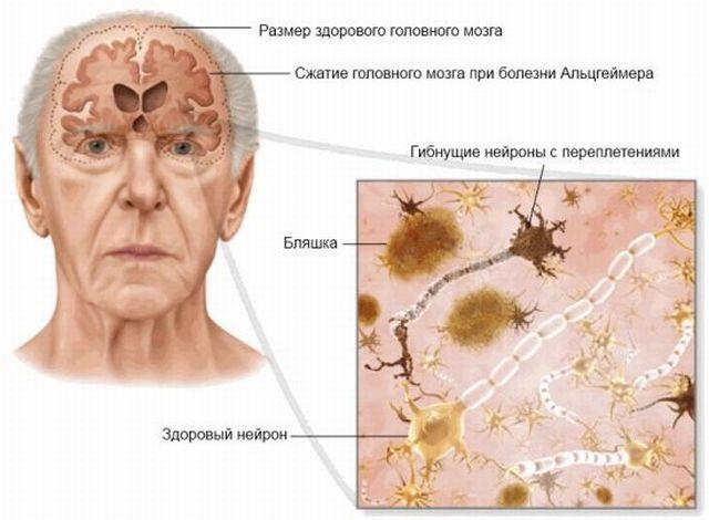 разрушение мозга при альцгеймере