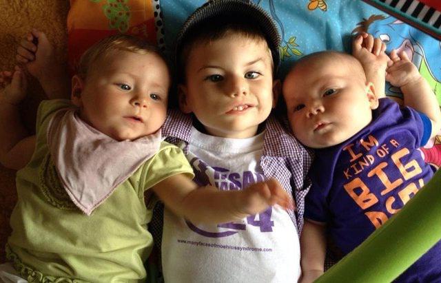 Синдро́м Мебиуса у детей: причини, симптоми, диагностика, лечение