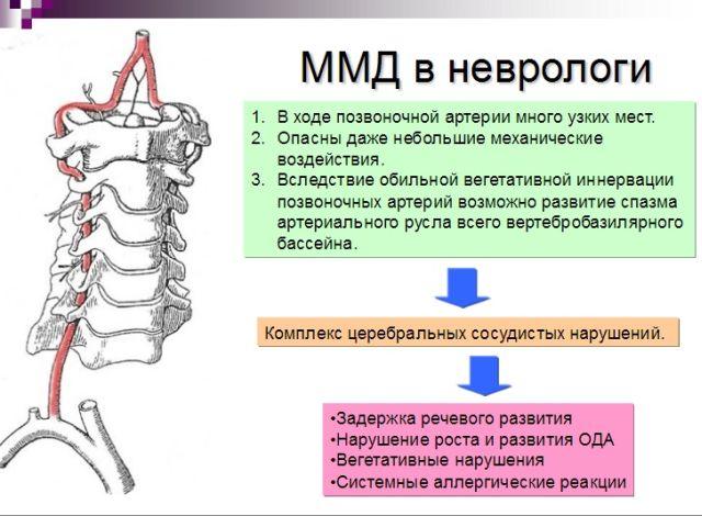 ММД в неврологии