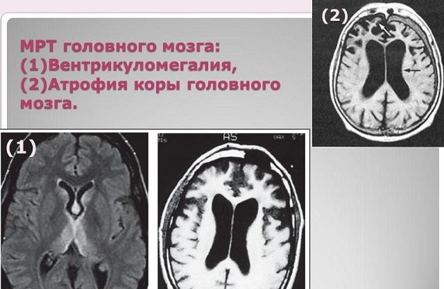 Расширение желудочков на МРТ