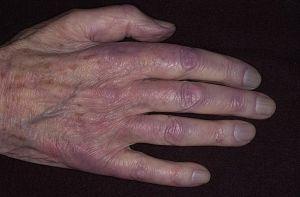 синюшность рук