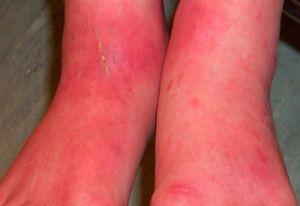 покраснение и воспаление ног