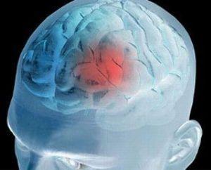 Нарушение в работе мозга