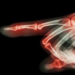 Разрушение кости руки