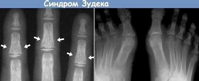 Рентген конечностей