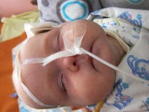 вентрикулит у новорожденных