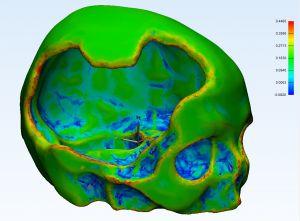 Снимок черепной коробки