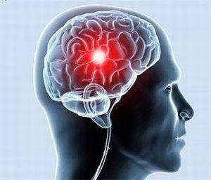 Мозговой кровоток