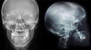 Обзорная рентгенография