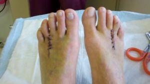 Хирургические разрезы на ногах