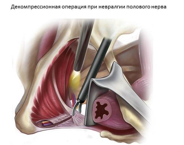 хирургическая декомпрессия