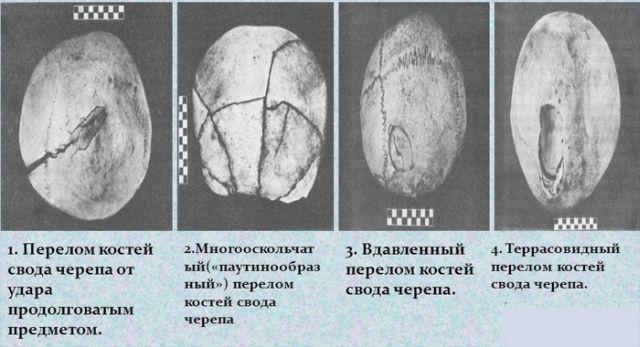 Переломы черепа
