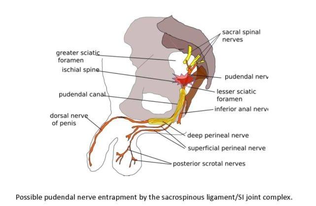 защемление полового нерва