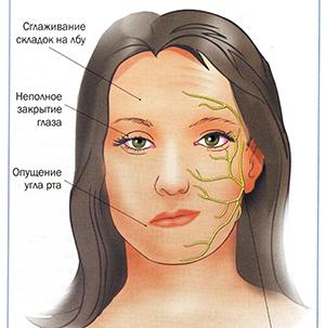 Патология лицевого нерва