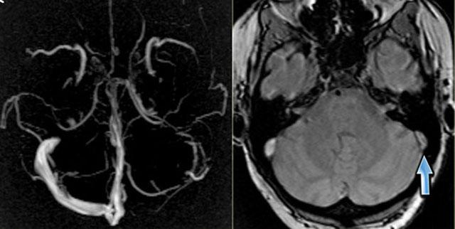 Диагностика патологий синусов