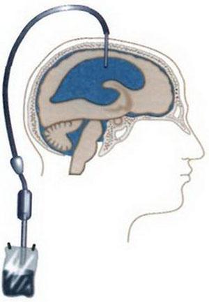 Шунт при гидроцефалии