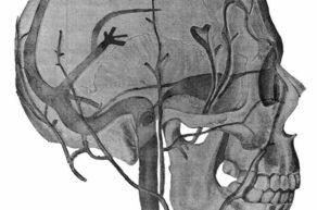 Твердые оболочки мозга