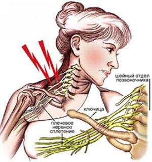 Шейный отдел нервных сплетений