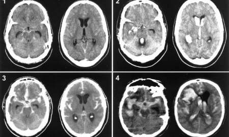4 стадии рака мозга