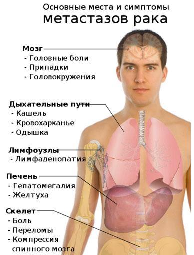 Симптомы метастазирования