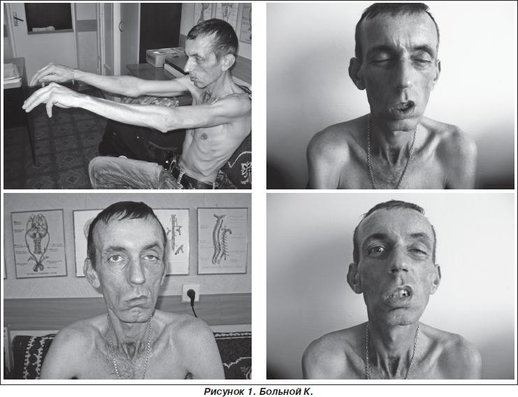 Симптомы Синдром Кернса–Сейра
